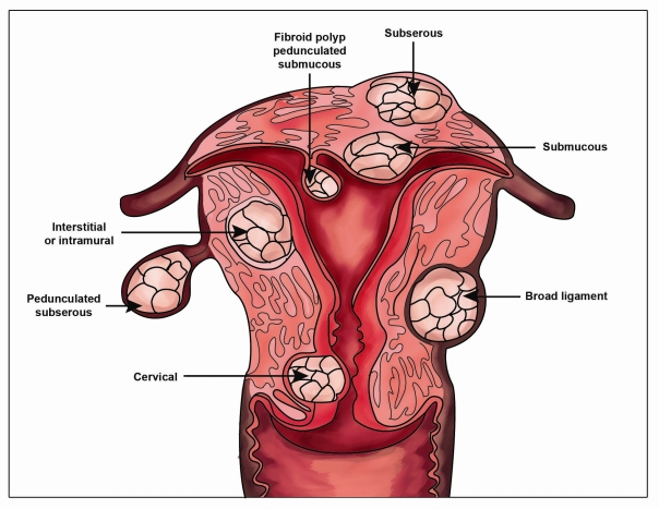 fibroid