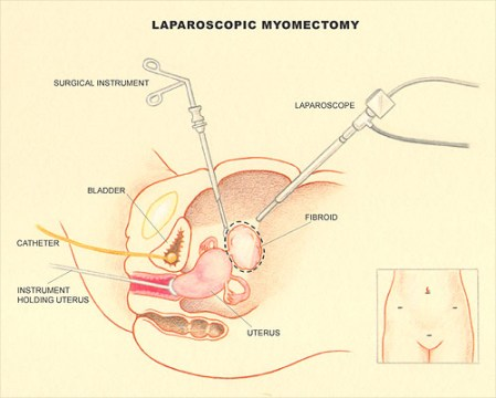 laparoscopy myomectomy
