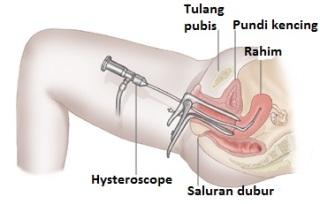 Hysteroscopy
