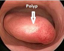 Polyp1