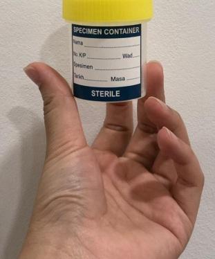 semen container